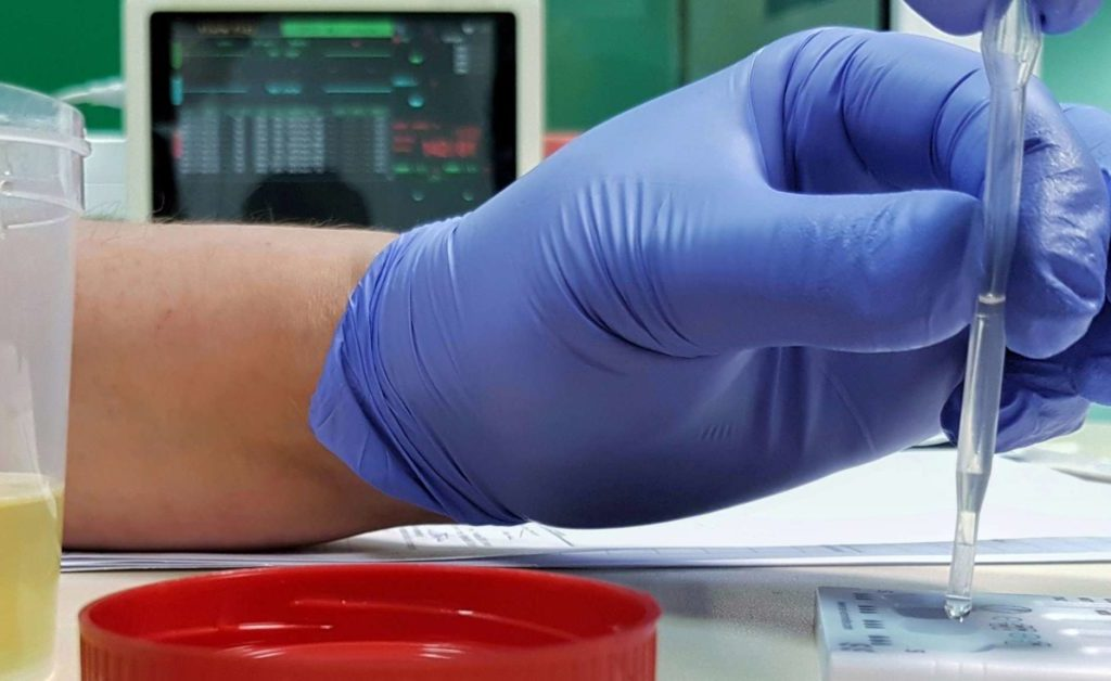 how to prepare for random drug test