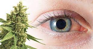 can edibles make your eyes red